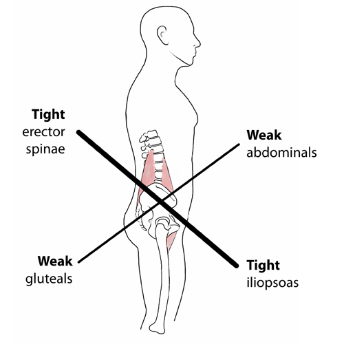 schema qui explique le lower-crossed syndrome