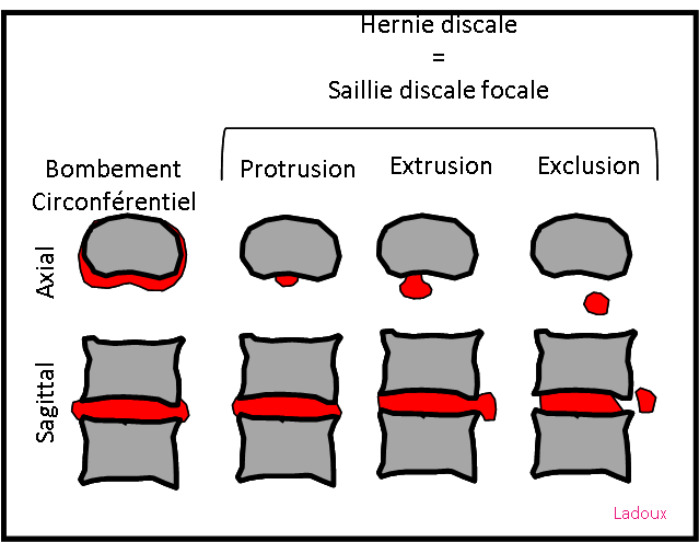 differents types de hernie discale