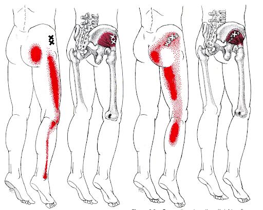 point gachette reponsables de la douleur derrière la cuisse