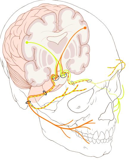 nerf crânien VII impliqué dans la paralysie de Bell